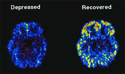 PET scan depression